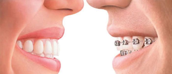 tractaments-amb-ortodoncia